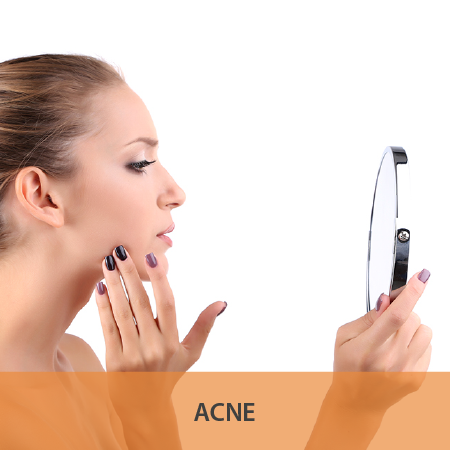 Tips for Acne Treatment