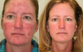 Surprising Symptoms Of Rosacea and How to Treat It