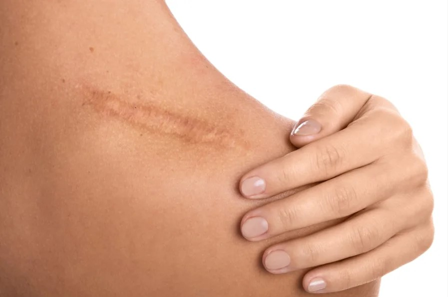 Dermabrasion Might Be the Scar Treatment You've Been Looking For!