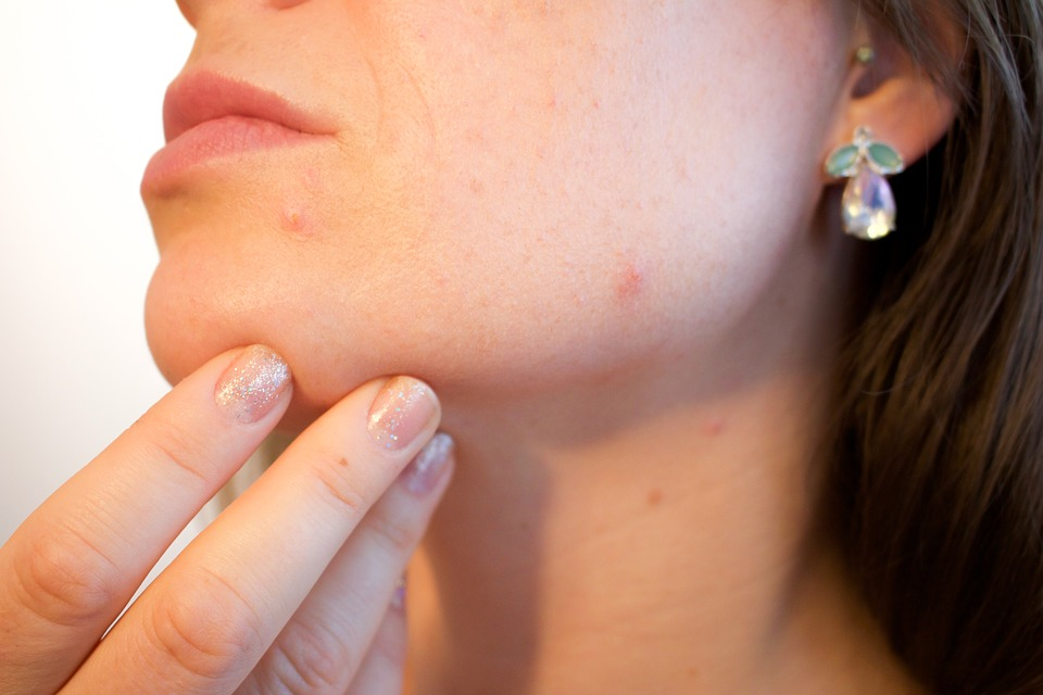 6 Ways You May be Making Your Acne Worse