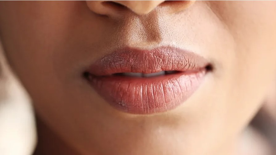 Why It's Time To Trade Your Lip Filler For A Lip Lift